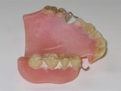 Denture Cleaning: Before